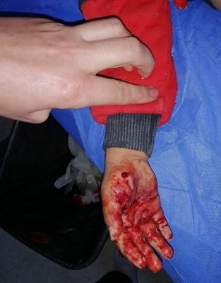 طفل ضحية للكلاب الشاردة في القنيطرة