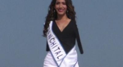 متحدية كل الظروف.. مولينا عارضة أزياء وستشارك في مسابقة ملكة الجمال