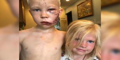 طفل يتصدى لكلب شرس دفاعا عن شقيقته
